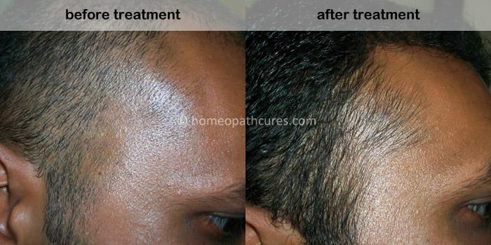 homeopathy treatment for alopecia