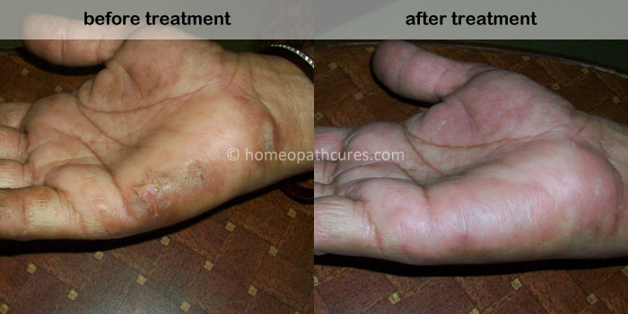 homeopathy treatment for eczema