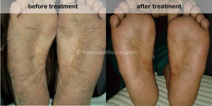 homeopathy treatment for flexural